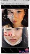 被余东性侵的19岁女生整容前后对比照 手术失败控诉其罪行