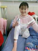 19岁独腿患癌女孩捐眼